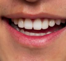 Primer plano de una boca sonriente