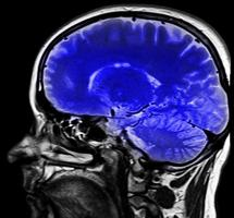 Estar alerta frente al uso de la neurociencia para explicar la conducta humana