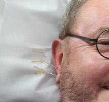 Utilizar acupuntura para dejar de fumar